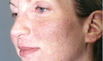 Woman with chemical peels condition