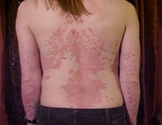 Patient with psoriasis