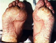 Patient with psoriasis 03