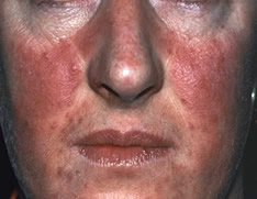 Woman having rosacea condition