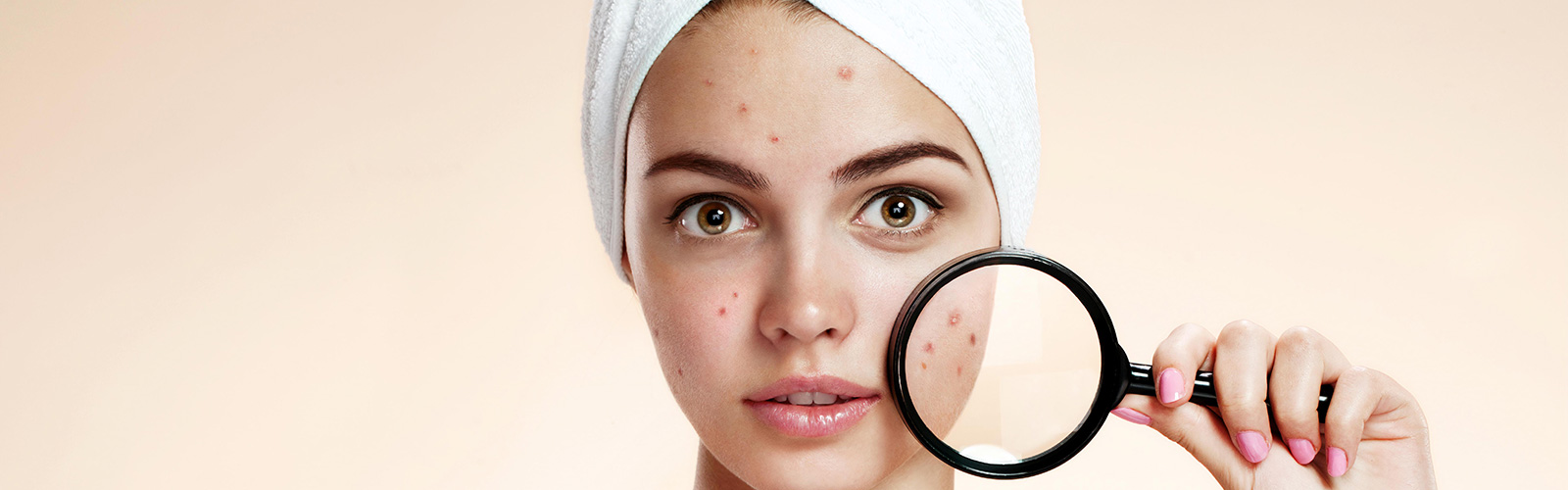 Treatment for Acne in Westlake area